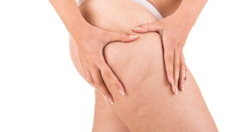 O que é celulite - causas e tratamentos