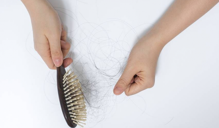 Queda de cabelo: causas mais comuns