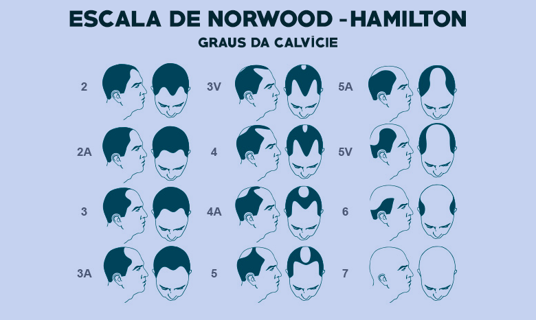 Escala de norwood hamilton