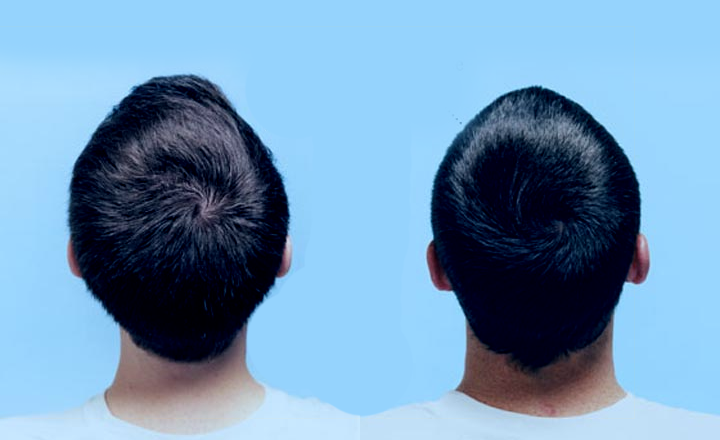 Redemoinho no cabelo