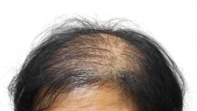 Alopecia androgenética
