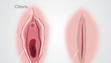 fimose feminina
